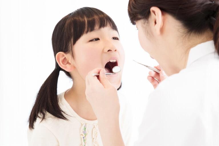 第二期矯正治療(12歳頃~成人)