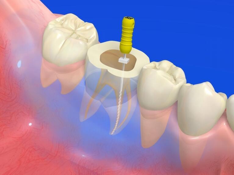 根管治療(歯の神経の治療)