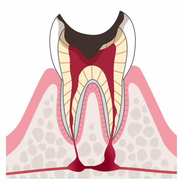 C4 末期のむし歯