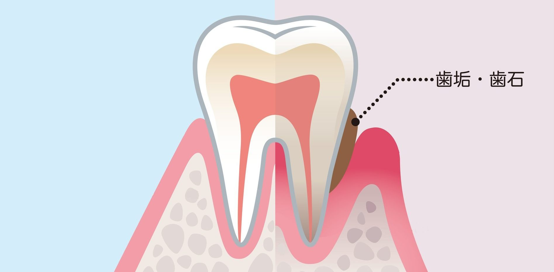 歯垢・歯石|御茶ノ水プライムデンタル