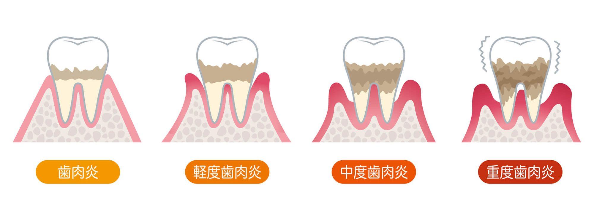 歯周病の症状|御茶ノ水プライムデンタル